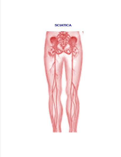 Sciatica Relief with Chiropractic